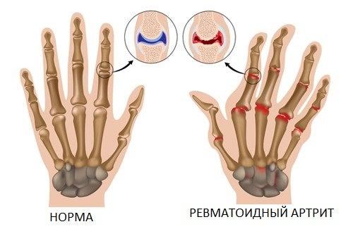 Натуральные средства для лечения артрита