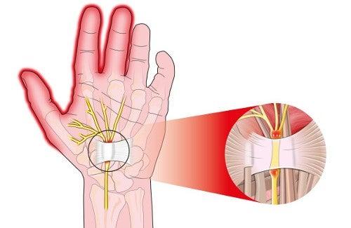 Синдром запястного канала: причины и лечение