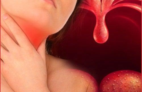 Фарингит: лекарства от природы