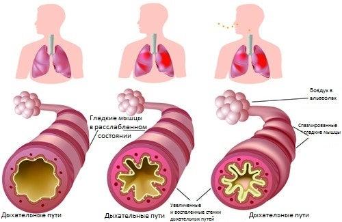 Хроническая астма и аллергия: лечим народными средствами