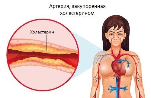 Как контролировать уровень холестерина: 5 простых шагов