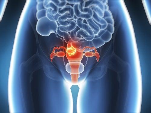 Эндометриоз и нерегулярный цикл