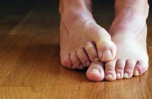Как избавиться от грибка на ногтях в домашних условиях