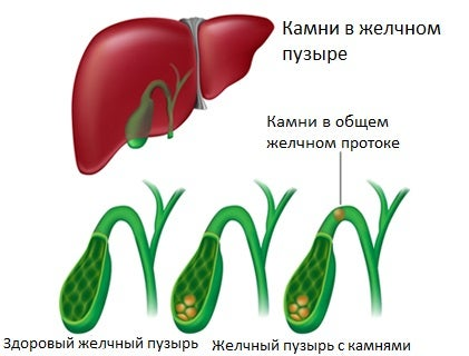 Симптомы камней в желчном пузыре