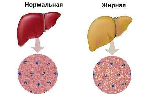 Советы по борьбе с жировой болезнью печени