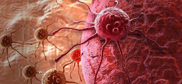 Симптомы рака. Как вовремя распознать?