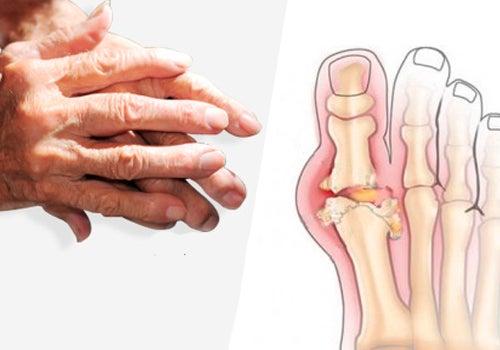 Симптомы и рекомендации по лечению артрита