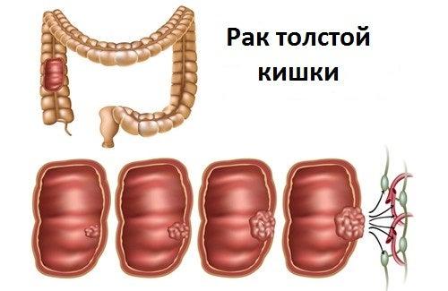 Colorrectalnyy-rak-500x325