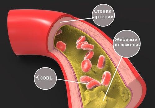 Клиника атеросклероза мезентериальных артерий