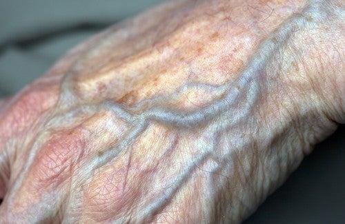 Как улучшить кровообращение в руках?