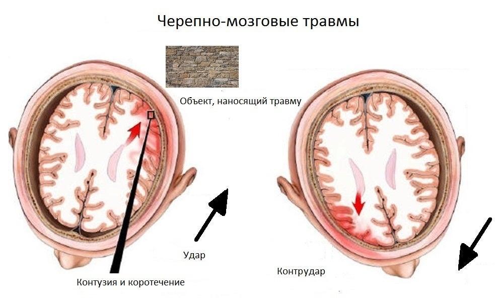 sotryasenie-tce