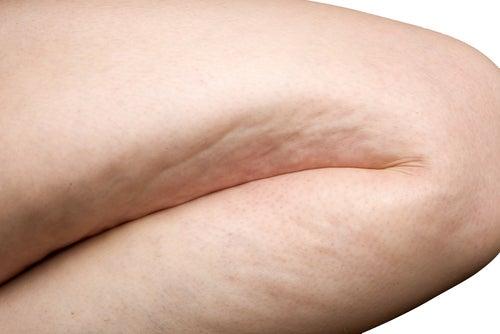 Простые упражнения против целлюлита
