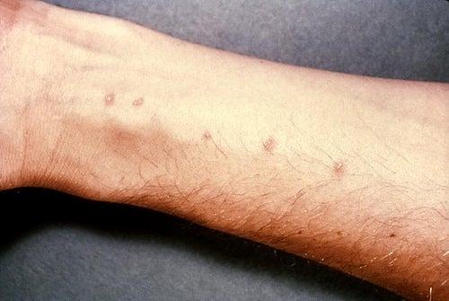 Sredstva-domashnie-dlya-lecheniya-dermatita-alérgicheskogo-ot-contacta