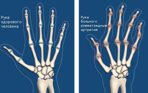 артрит-ревматит
