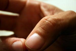 Избавится от экземы на пальцах