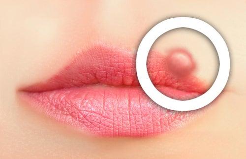 Как предотвратить герпес на губах