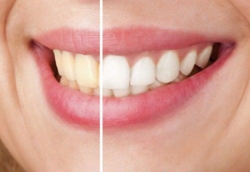 Как отбелить зубы натуральным путем?