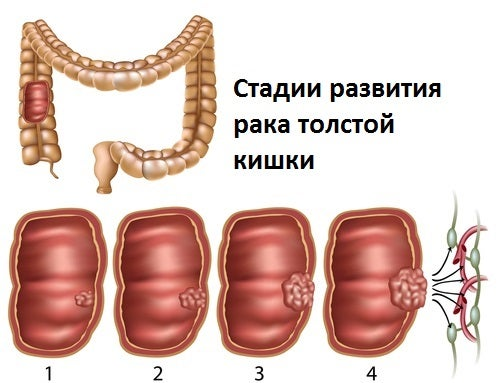 Заболеваемость раком прямой кишки