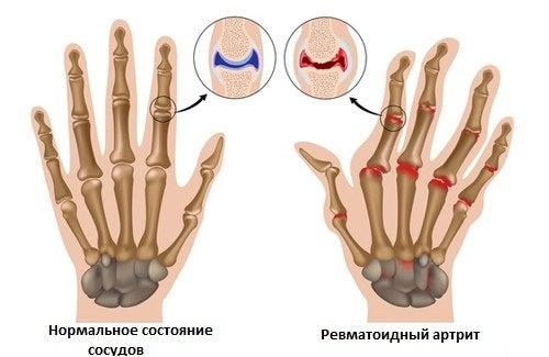 Для борьбы с артритом