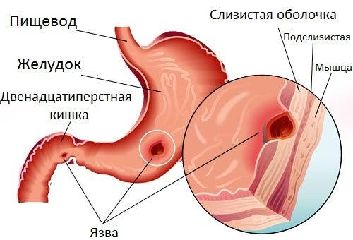 Язва желудка и натуральные средства для борьбы с ней