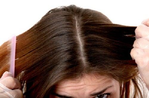 жирные-волосы