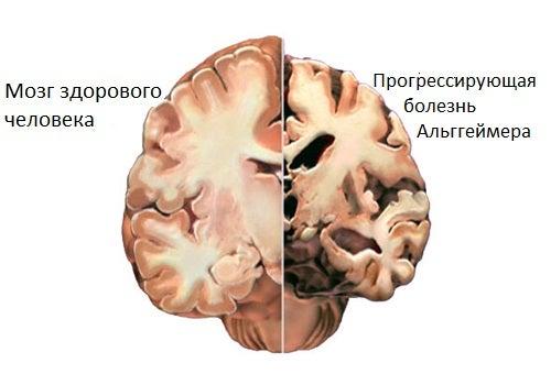 Болезнь Альцгеймера: как выявить первые симптомы