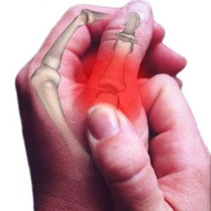 артроз-большой-палец