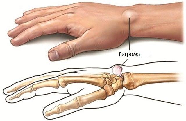 Почему болят руки и запястья? | uDuba.com
