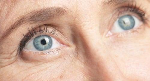 морщины-глаз1