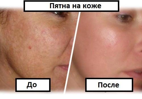 Как избавиться от дефектов кожи?