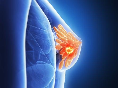 Рак груди можно предсказать