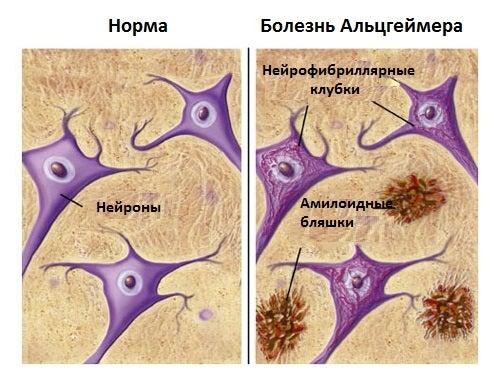 Эти продукты защитят вас от болезни Альцгеймера