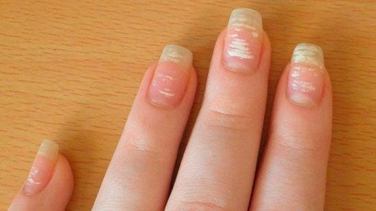 Состояние ногтевой пластины и заболевания