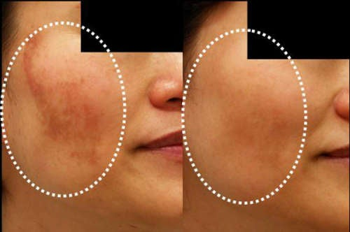 Меланоз кожи и как бороться с ним натуральными средствами