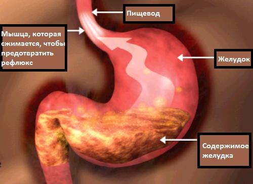 Победить желудочно-пищеводный рефлюкс