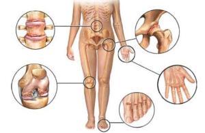 Проблемы при артрите