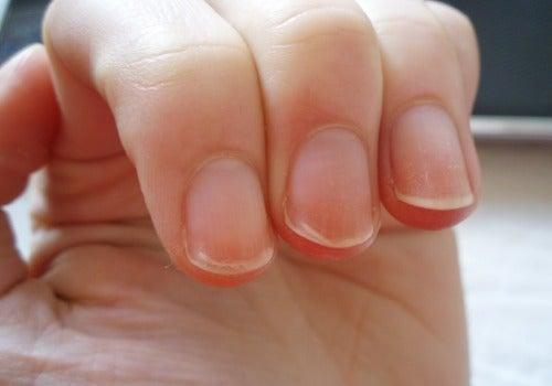 Состояние ногтевой пластины как индикатор здоровья человека