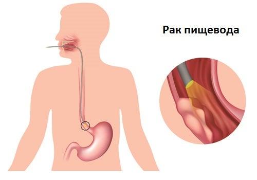 Симптомы основных заболеваний пищевода