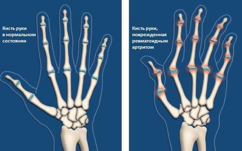 6 шагов, чтобы облегчить состояние при артрите