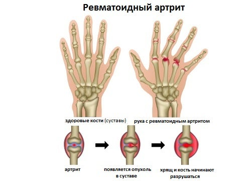 Каковы симптомы ревматоидного артрита?