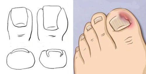 Как лечить вросшие ногти