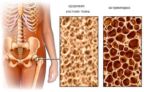 Какие продукты включить в рацион при остеопорозе