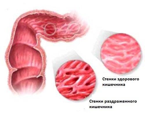 Лекарственные травы для лечения синдрома раздраженного кишечника