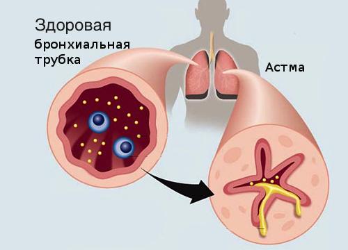 10 продуктов против астмы