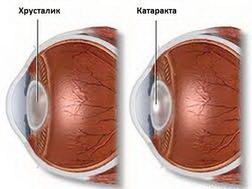 katarakta1