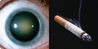 Катаракта и курение