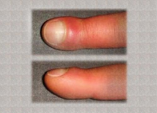 Отекшие пальцы
