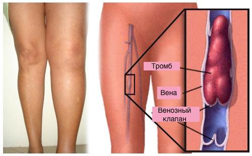 Что такое тромбоз и как его предотвратить?