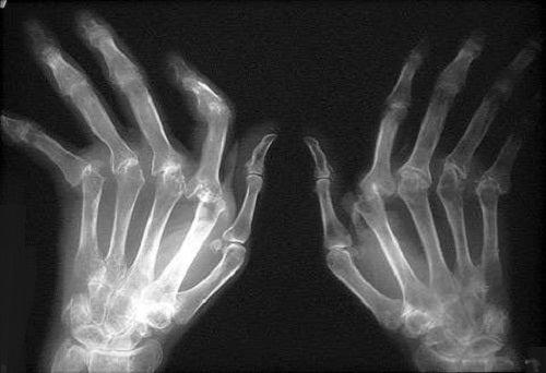 Как лечить ревматоидный артрит?