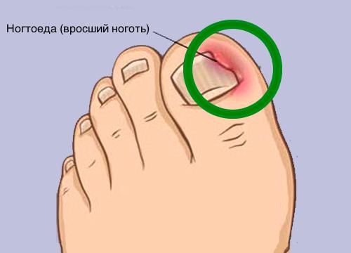 Как решить проблему вросших ногтей и что такое панариций?